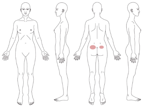 腰痛の症例_18