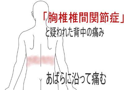 鍼灸_胸椎椎間関節症_症例図_YMHS090916