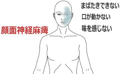 鍼灸_症例_顔面神経麻痺(ベル麻痺)_YFTN070916