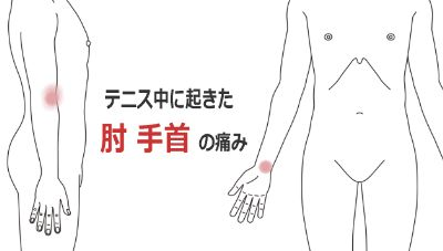 テニス肘(テニス中におこた肘と手首の痛み)