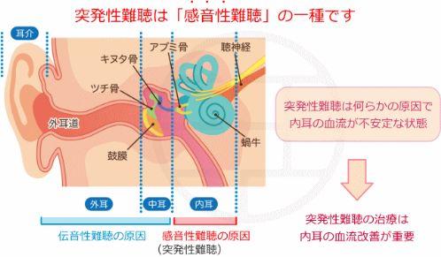 突発性難聴は感音性難聴の一種