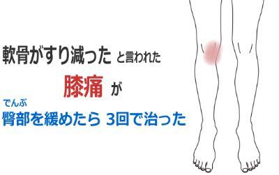 軟骨が磨り減っていると言われた膝痛の症例(鍼灸/群馬県伊勢崎市)