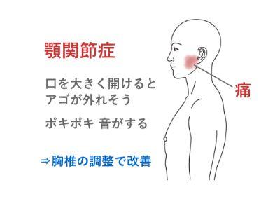 顎関節症の治療(鍼灸/群馬県伊勢崎市)