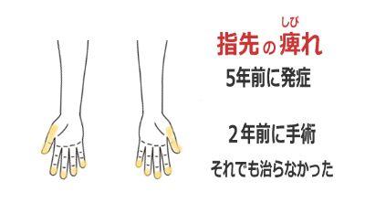 手の指先のしびれの症例(鍼灸/群馬県伊勢崎市)