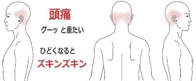 頭痛(グー、ズキンズキン)の症例(鍼灸/群馬県伊勢崎市)