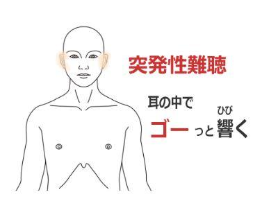 突発性難聴の症例(鍼灸/群馬県伊勢崎市)