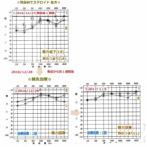 突発性難聴の症例16・オージオグラム(鍼灸/群馬県伊勢崎市)