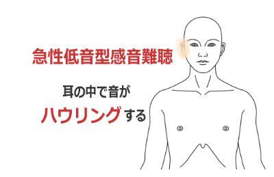 急性低音障害型感音難聴の症例(鍼灸/群馬県伊勢崎市)
