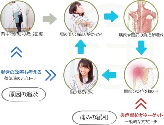 五十肩の治療イメージ