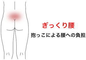 鍼灸症例_腰痛25(ぎっくり腰)