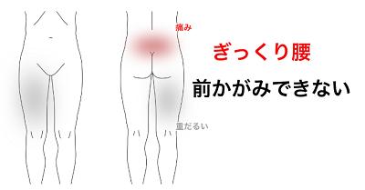 鍼灸症例_腰痛26(ぎっくり腰)
