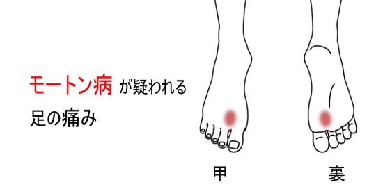 鍼灸症例_モートン病が疑われる足の痛み