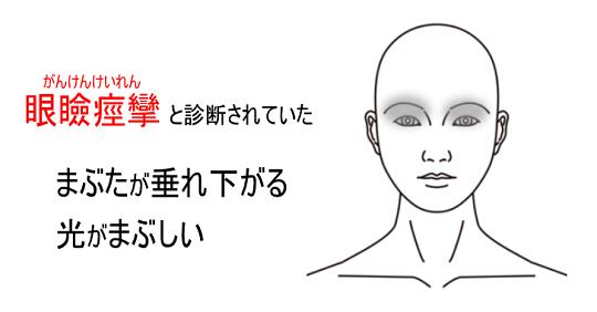 鍼灸症例_眼瞼痙攣_KFさん