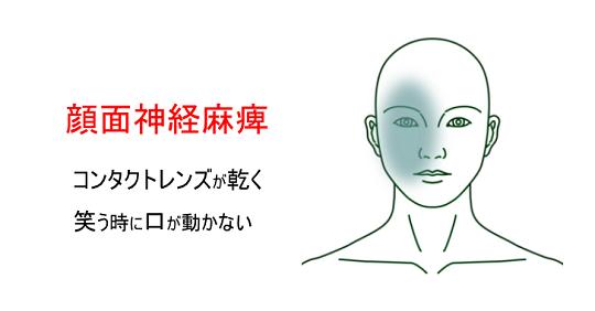 鍼灸症例_顔面神経麻痺_02