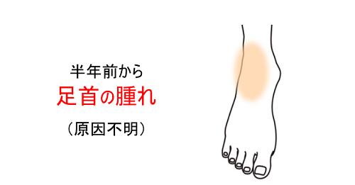 鍼灸症例_足首の腫れ(原因不明)